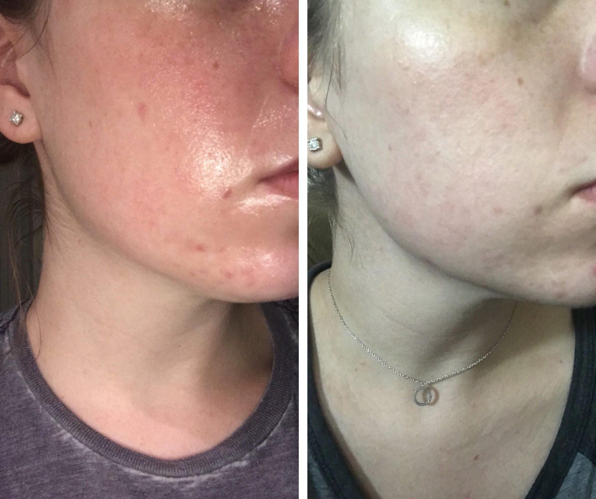 B&A] One month since adding Vitamin C and hyaluronic acid : SkincareAddiction