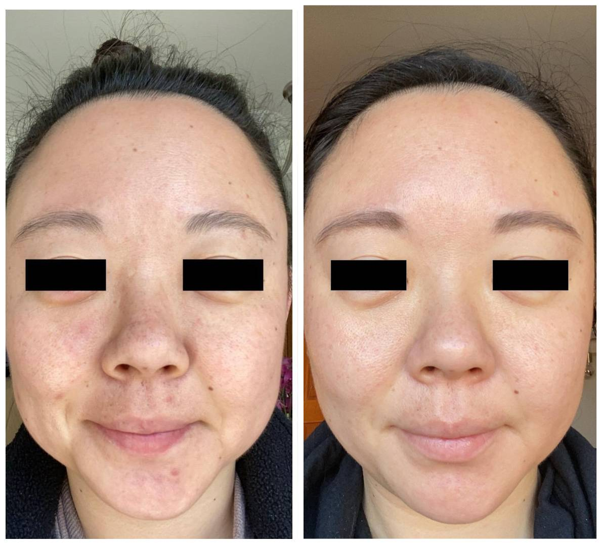tretinoin before and after